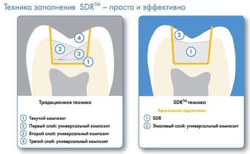 Схема внесения композиционного материала SDR в полость зуба